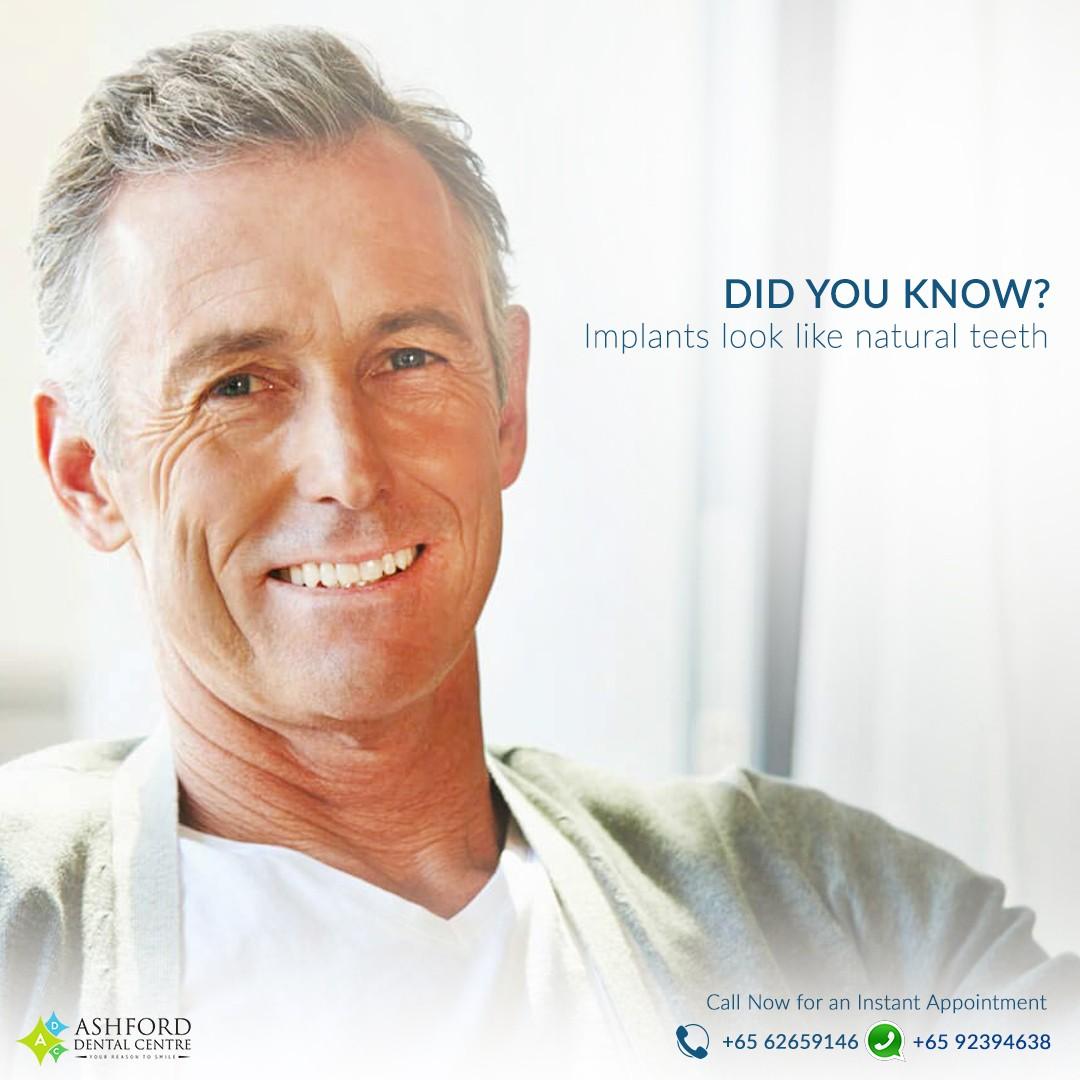 Ashford Dental Centre Ashford-IG-Post_2 Dental Implants in Singapore...Get A Great Smile. Uncategorized
