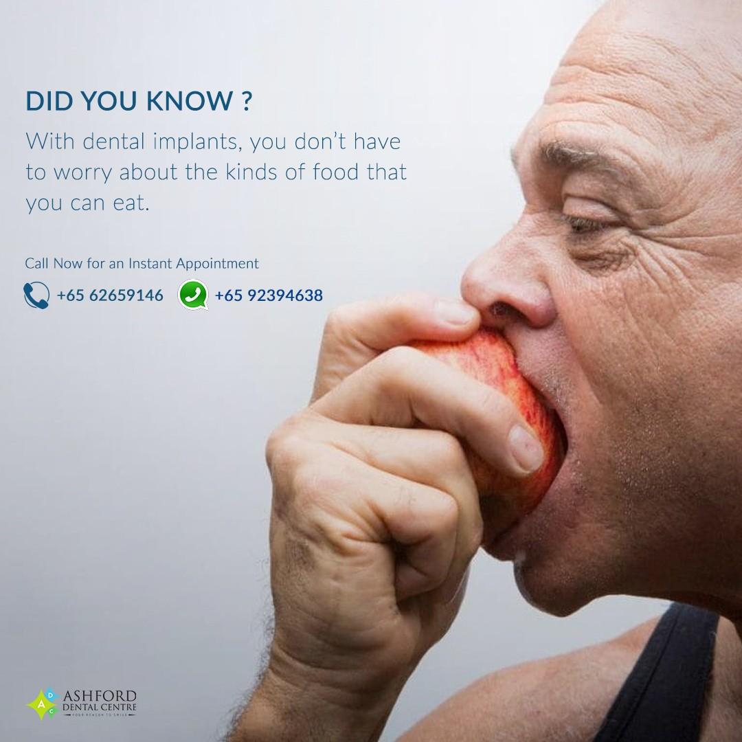 Ashford Dental Centre Ashford-IG-Post_3 Dental Implants in Singapore...Get A Great Smile. Uncategorized