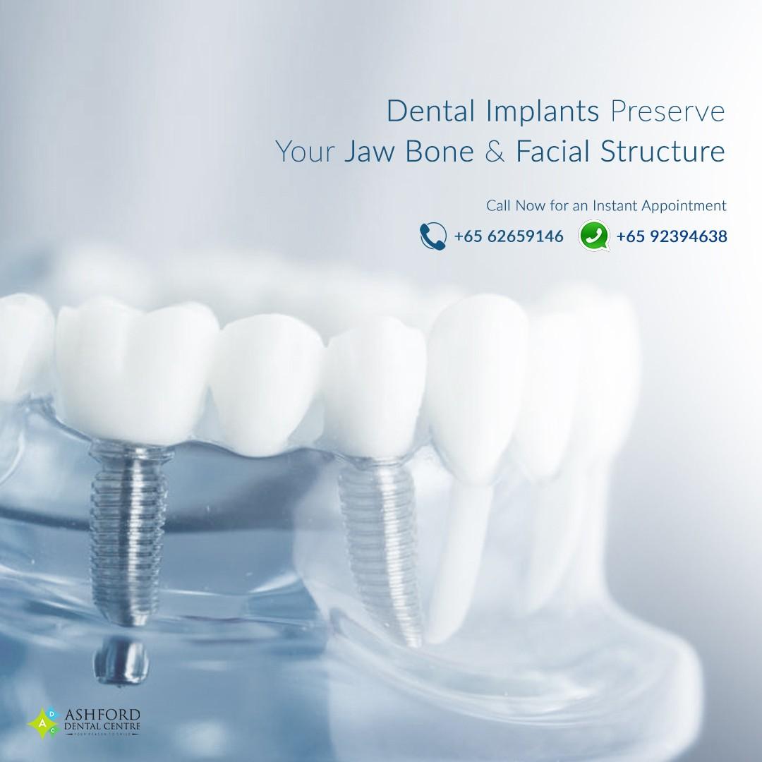 Ashford Dental Centre Ashford-IG-Post_6 Dental Implants in Singapore...Get A Great Smile. Uncategorized