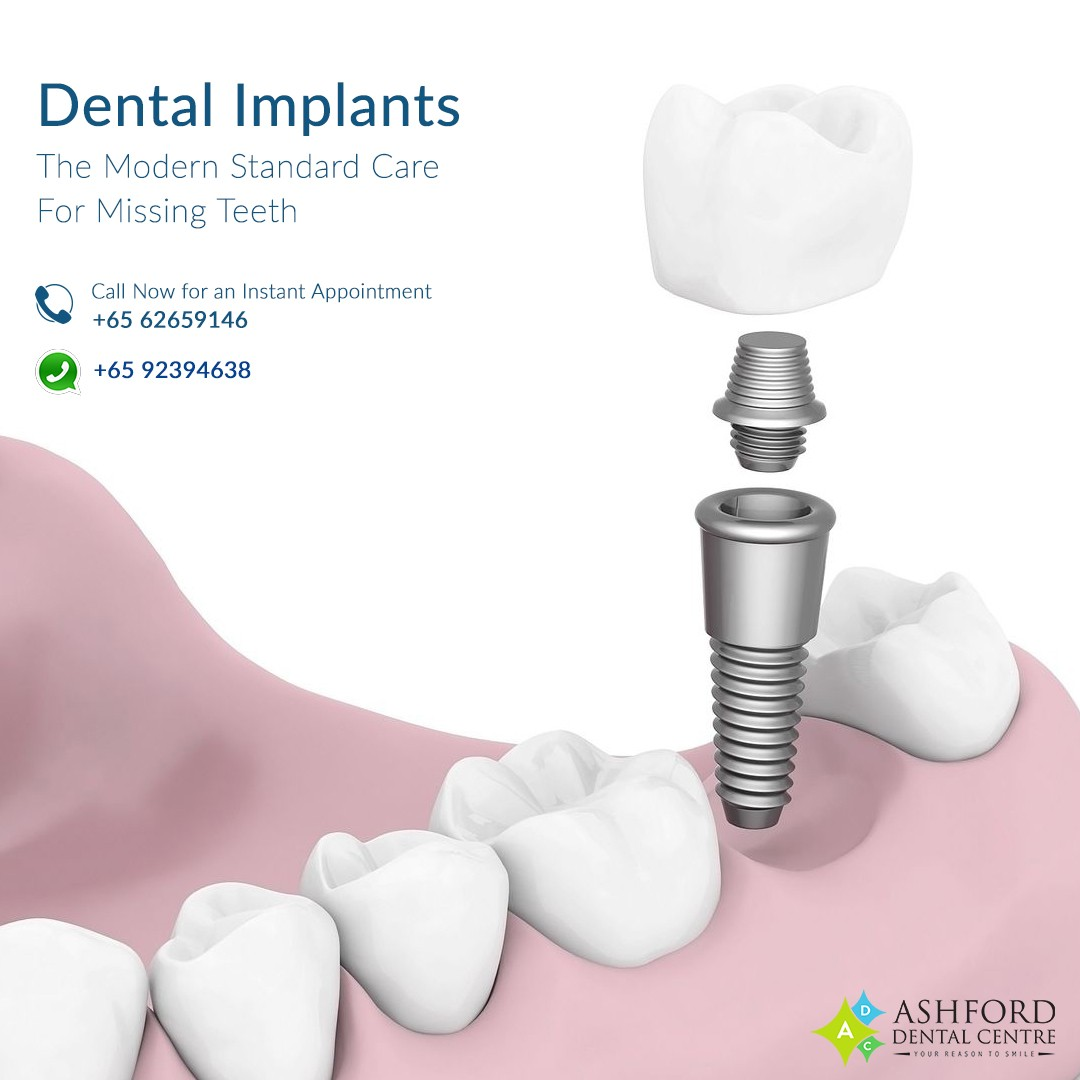 Ashford Dental Centre Ashford-IG-Post_1 Dental Implants in Singapore...Get A Great Smile. Uncategorized