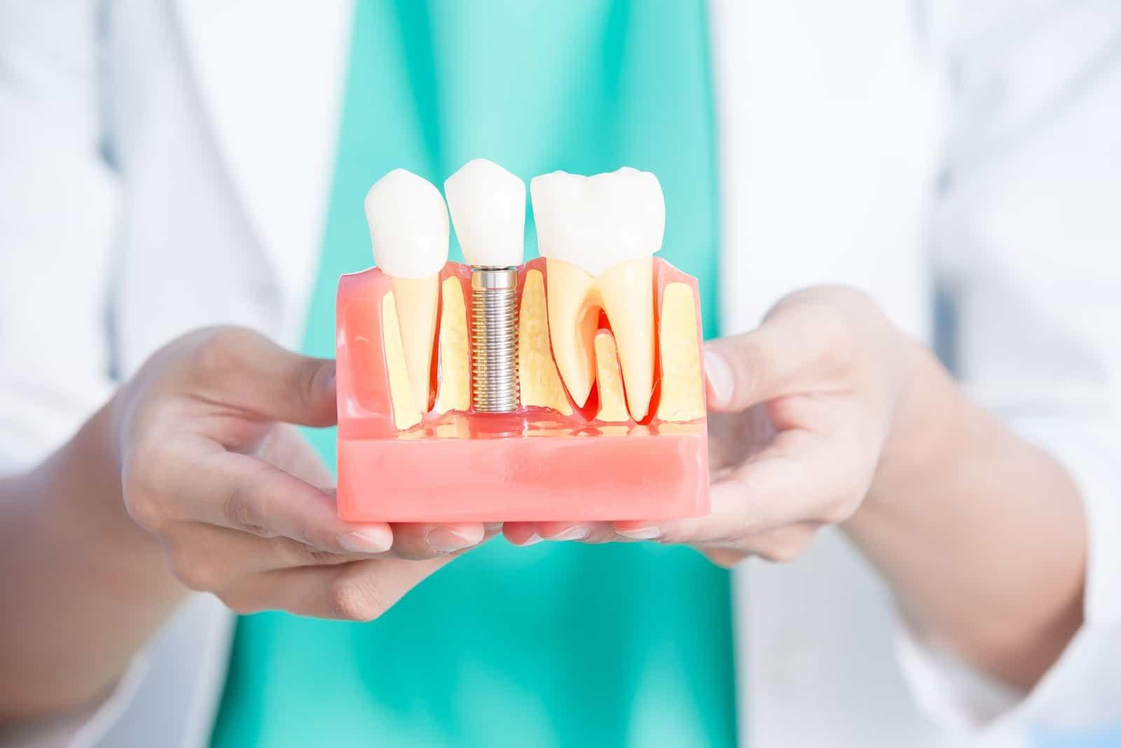 Ashford Dental Centre lifelong-solution Why Consider Dental Implants Uncategorized  Oral Hygiene General Wellness Dental Health