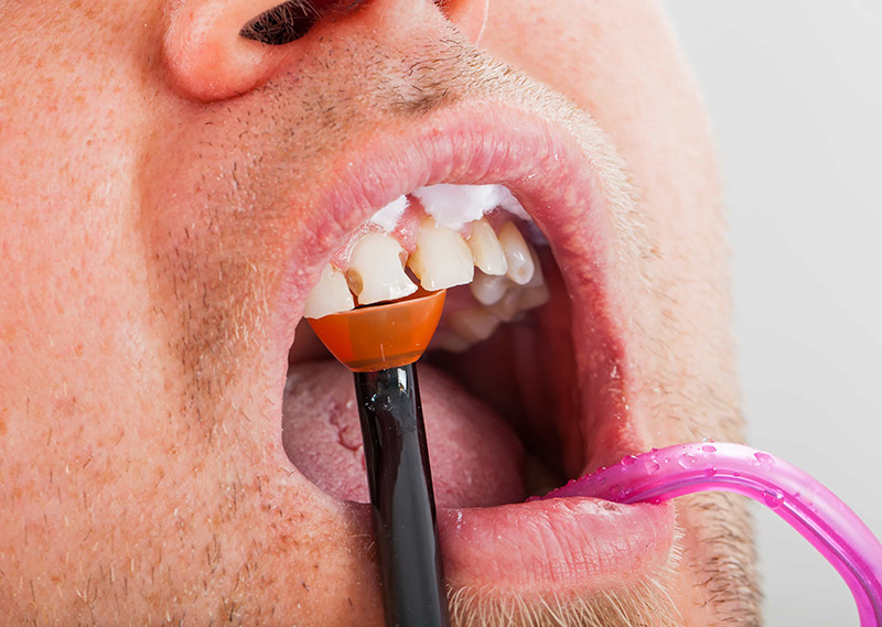 Ashford Dental Centre cavities-1 5 Dental Emergencies You Should Never Ignore Uncategorized  Oral Hygiene General Wellness Dental Health